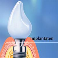 Lees meer over het artikel Brochure: implantaten