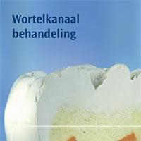 Lees meer over het artikel Brochure: wortelkanaalbehandeling